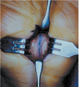 Операция СКК