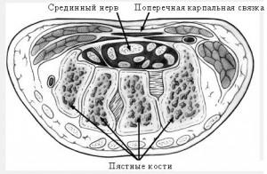 карпальный канал1