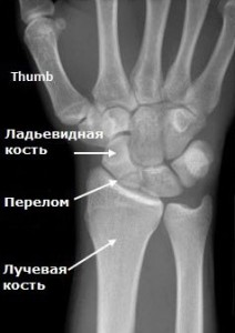 рентген ладьи